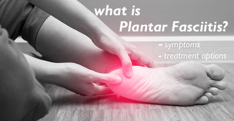 What is Plantar Fasciitis, treatment options, Southside Physio Canberra